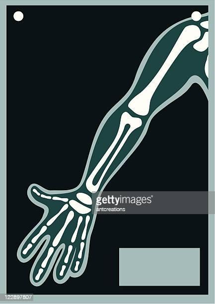 Human Body X Ray Arm