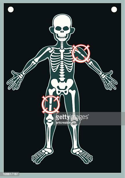 Human Body X Ray