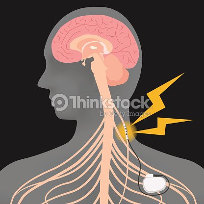 Human Brain And Vagus Nerve Stimulationvns Image Illustration Vector