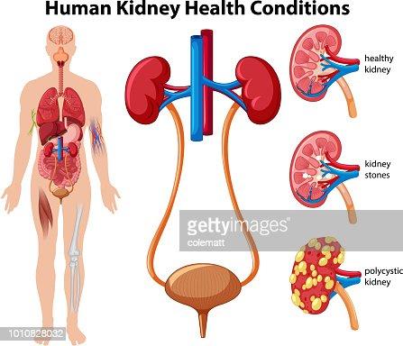 Human Kidney Health Conditions : stock vector