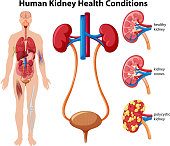 Human Kidney Health Conditions illustration