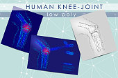 Human knee-joint low poly medicine science illustration set. Knee anatomical pain cure concept. Help keep health drug mechanism action on joint vector polygonal geometric point line art
