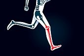 Human Leg bone and foot while run have a red signal. This illustration about pain symptom on leg from movement or running.