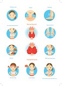Symptoms of the disease hyperthyroidism  illustrations in the circle.Cartoon Vector