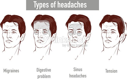 36f0d334810a0 Illustration about headaches 4 type on different area of patient head.