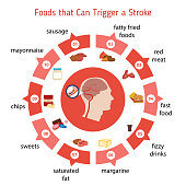 Infographics for stroke. Foods that Can Trigger a Stroke. Vector illustration.