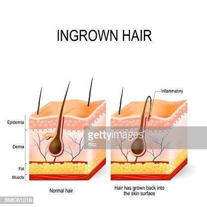 Ingrown hair after having : stock vector