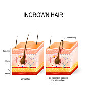 Ingrown hair after having. buried hair. structure of the hair follicle. razor bumps