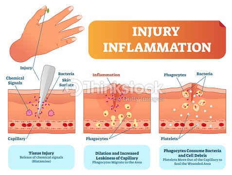 Injury inflammation biological human body response vector injury inflammation biological human body response vector illustration scheme skin surface injury cross section poster ccuart Gallery