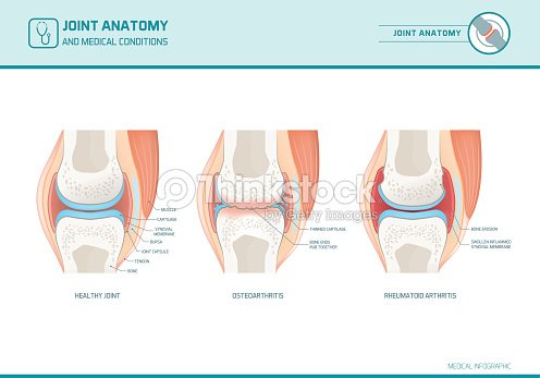 Joint anatomy, osteoarthritis and rheumatoid arthritis infographic : stock vector