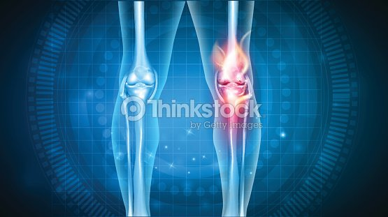 Knee pain abstract design : stock vector