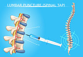 Lumbar Puncture or Spinal Tap Procedure Medical Vector Poster with Human Vertebral Column and Syringe Needle Inserted Into Spinal Canal to Collect Cerebrospinal Fluid Anatomical Realistic Illustration