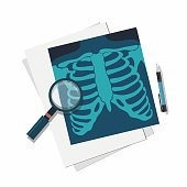 Medicine concept. X-ray lungs, magnifier and pen. Vector illustration