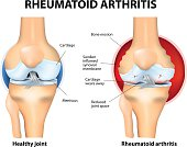 Rheumatoid Arthritis or RA is an inflammatory type of arthritis that usually affects knees. Rheumatoid arthritis of the knee the auto immune disease. The body's immune system mistakenly attacks health