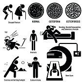 Set of illustrations for osteoporosis disease which include the symptoms, causes, risk factors, and the diagnosis for the illness.