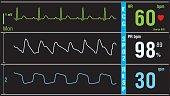 Patient display ECG electrocardiogram EKG vital signs. Medical examination shot.