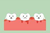 dental cartoon vector, unhealthy teeth because periodontitis and bleeding