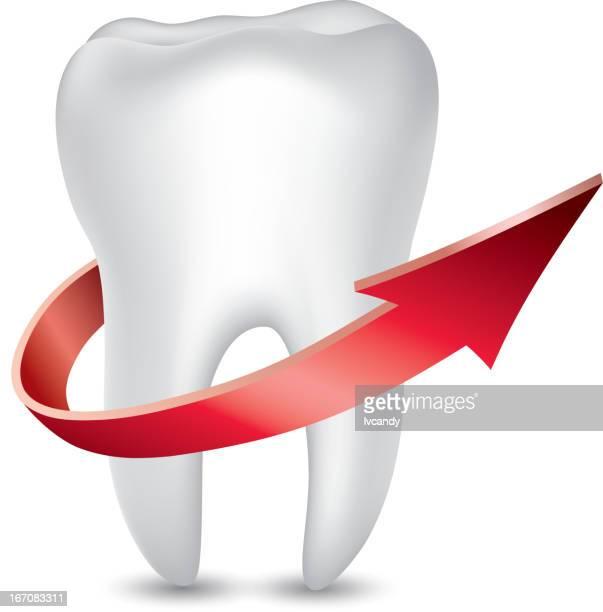 Protección de dientes