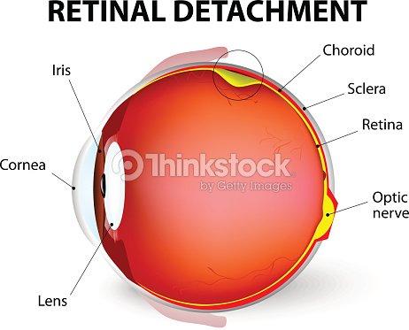 Retinal Detachment Vector Diagram Vector Art Thinkstock