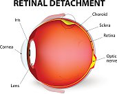 Retinal detachment is an eye disease in which the part containing the optic nerve is removed from its usual position at the back of the eye. The retina is the light-sensitive layer of tissue that line