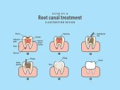 Root canal treatment illustration vector on blue background. Dental concept.