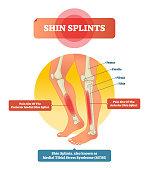 Shin splints vector illustration. Leg muscle sport trauma and bone pain labeled diagram. Isolated femur, patella, fibula, tibia and foot bones with shown injury location.