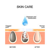 Skin care. Clogged and normal pores. Before and after using scrubs, cleansers and moisturizers