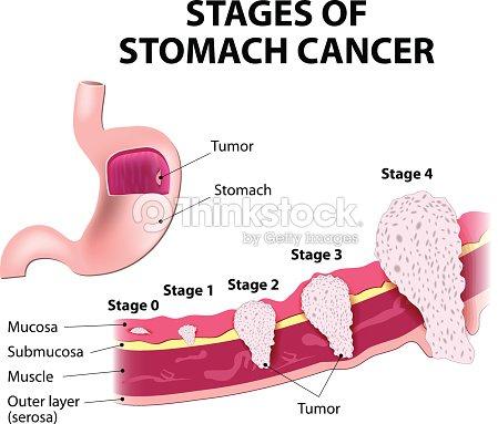 Scène De Cancer De Lestomac Clipart vectoriel   Thinkstock