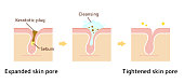 Structure illustration of pores / Clear keratotic plug (whiteheads ,blackheads ) with cleansing.