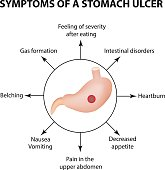 Symptoms of a stomach ulcer. Infographics. Vector illustration on isolated background.