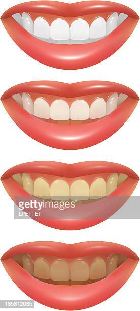 Blanqueamiento dental-Ilustración vectorial