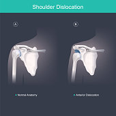 This is use for explain and compare when the head of the humerus is out of the shoulder joint include shoulder pain. Anatomy body human illustration.