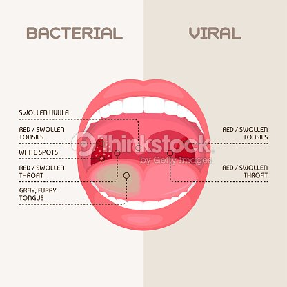 throat infection tonsils inflammation stock vector