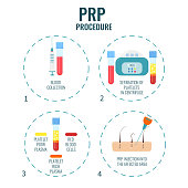 Platelet rich plasma procedure stages. PRP hair loss treatment steps. Alopecia infographic medical design template for transplantation clinics and diagnostic centers. Vector illustration.