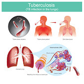 Patients with respiratory infections. Caused by tuberculosis bacteria. tuberculosis bacteria bite the tissue, resulting in leakage of blood vessel. Illustration.