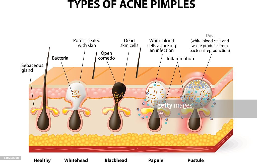 Types of acne pimples : Vector Art
