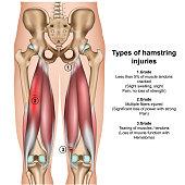types of hamstring injurys 3d medical vector illustration on white background eps 10