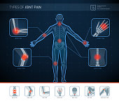 Types of joint pain medical infographic with icons