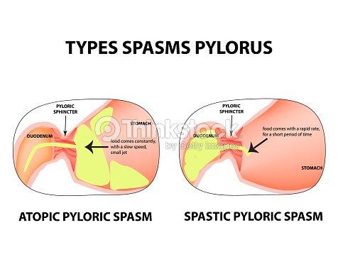 Tipos De Espasmos Del Píloro Pylorospasm Espástica Y Atónicas ...