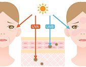 UVA rays damage the dermis, and a major part in skin aging and wrinkling. UVB rays, the chief cause of skin reddening and sunburn,  damage the epidermis.