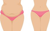 Vector illustration of a fat and thin female belly. Isolated white background. Human abdomen before and after losing weight. Flat style.