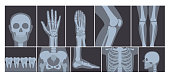 Vector illustration of realistic set of many X-rays pictures of human body. Transparent X-ray photos on white background