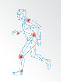 Vector medical illustration of joint pain demonstrated on running man