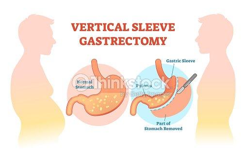 Vertical sleeve gastrectomy medical vector illustration diagram with vertical sleeve gastrectomy medical vector illustration diagram with stomach surgical cut arte vetorial ccuart Gallery