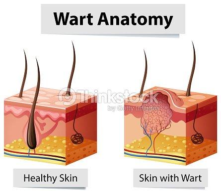 Ilustración De Anatomía Humana De Piel Verruga Arte vectorial ...