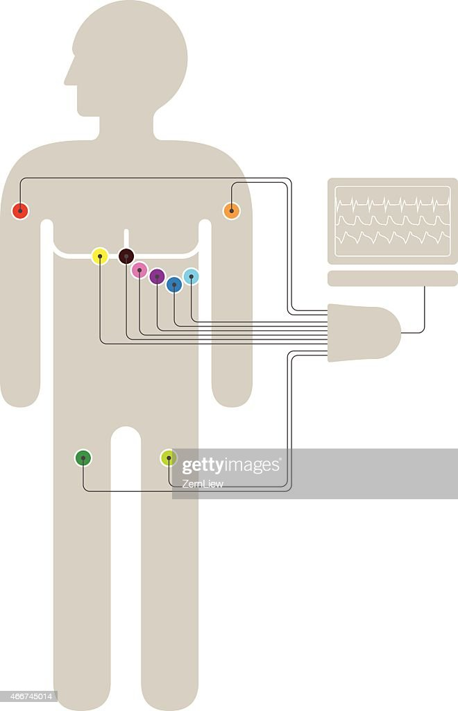 ecg ekg wiring diagram vector art thinkstock rh thinkstockphotos com EKG Placement Diagram EKG Leads Placement Diagram
