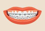 Woman smile with braces. Vector flat cartoon illustration