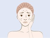 Beauty women have problem acne skin on face in cartoon version