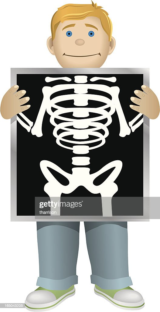 x ray clipart images - photo #35