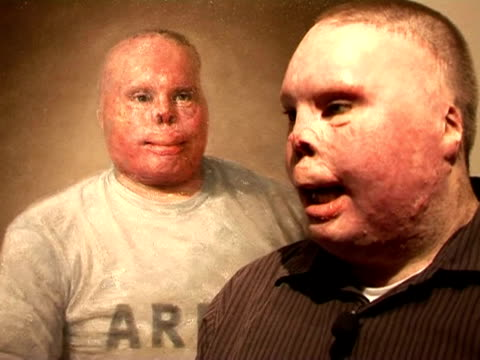 After surviving an explosion while serving in Iraq retired army Sergeant Richard Yarosh was left severely disfigured his face covered in scar tissue...
